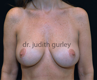 Breast Lift Before & After St. Louis | Breast Lift Chesterfield, MO