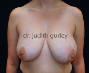 Breast Reconstruction St. Louis | Breast Removal Missouri