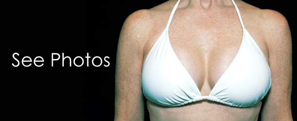 See the results of Breast Augmentations conducted by Dr. Judith Gurley