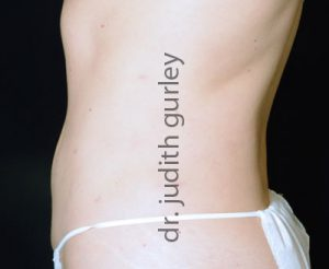 liposuction before & after st louis & chesterfield mo