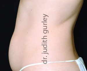 liposuction-st-louis-chesterfield-mo-before