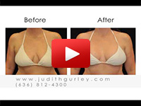 Learn more about Breast Lift procedures with Dr. Judith Gurley in this video