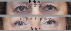 Lower Eye Bag reduction in st. louis mo | Dr. Judith Gurley